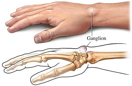 Ganglion Cysts: Symptoms and Treatment