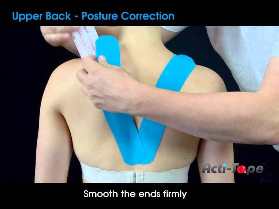 Postural Correction and Assistance with Kinesio Taping ...